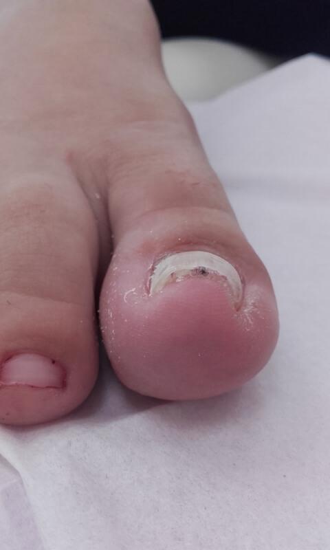 wkręcający paznokieć przed rozpoczęciem leczenia