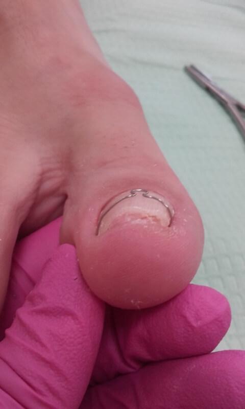 wkręcający paznokieć w trakcie leczenia