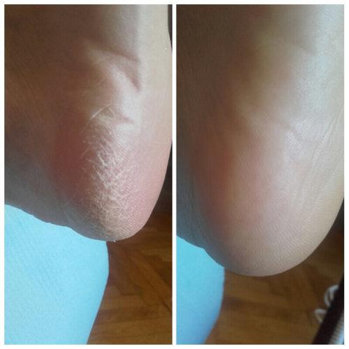 przed i po terapii pękających pięt