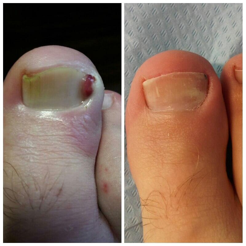 przed i po terapii paznokcia wrastającego