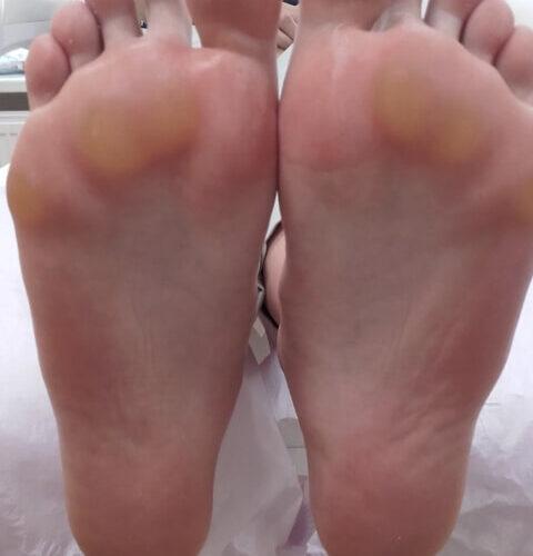 stopy pacjenta tuż przed podstawowym zabiegiem podologicznym