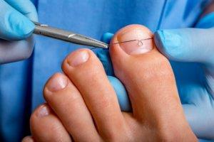 Doświadczony podolog w Bydgoszczy w trakcie leczenia paznokci